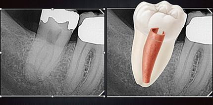 C-förmige Wurzelkanäle – eine endodontische Herausforderung