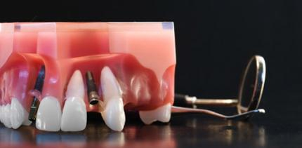 Implantatversorgung bei Nichtanlage von Zähnen?