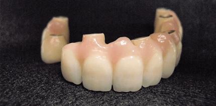 Kombinierte, CAD/CAM-gefertigte Brücken auf sieben Implantaten