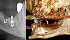 Herstellung und Anwendung CAD/CAM-gefräster Knochenblöcke