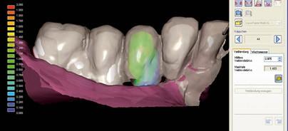 Funktion und Ästhetik – Implantologische Versorgung mittels CAD/CAM
