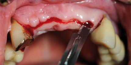 Individuelle CAD/CAM-Abutments und neues Implantatdesign für mehr Ästhetik