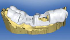 Implantologie und Chairside-Fertigung – geht das zusammen?