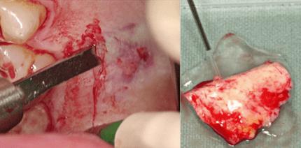 3-D-Augmentation mit simultaner Implantation