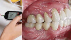 Auswirkungen der Assoziation zwischen Parodontitis und Diabetes in der Patientenberatung
