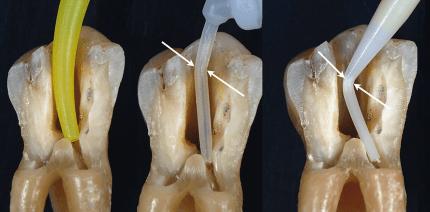 Neue Optionen für devitale Zähne: Das Colibri-Konzept