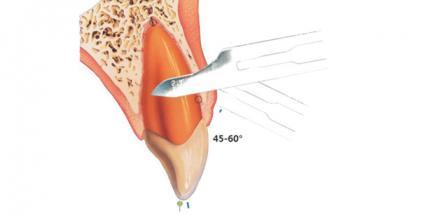 Corticision als Technik zur Beschleunigung von Zahnbewegungen