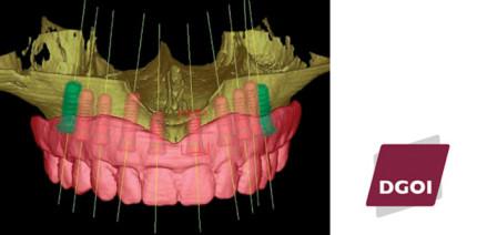 Moderne Implantatprothetik fordert fundiertes Wissen