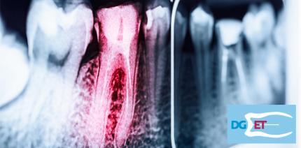 Noch freie Plätze beim Curriculum Endodontie der DGET