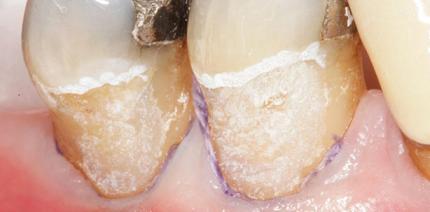 Minimalinvasive Dentinadhäsion im Alter