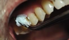 Schmerzempfindliche Zähne – eine Herausforderung für die Praxis