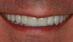 4-Quadranten-Rehabilitation einer stark erodierten Dentition