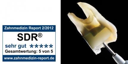Anwender bestätigen: SDR vereinfacht die Füllungstherapie von Seitenzähnen