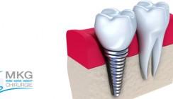 Zahnimplantate: heute so sicher wie nie