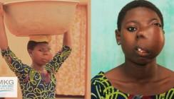 Mädchen in Togo von gefährlichem Gesichtstumor befreit