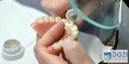 DGZI: Gelungener Start für das Curriculum Implantatprothetik