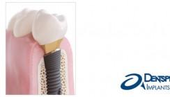 DENTSPLY Implants zeigt Profil: mit OsseoSpeed Profile EV