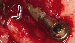 Diabetes mellitus in der Implantologie