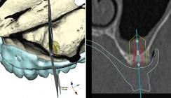 Fortschritte in der digitalen Implantatprothetik