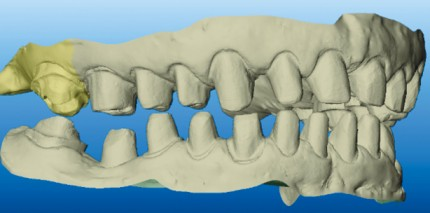Möglichkeiten und Chancen der digitalen Zahnmedizin