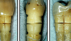 Modifikation von Zahnhalsdentin mit einem Diodenlaser