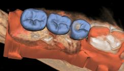 Darstellungsqualität und Strahlenbelastung bei der DVT-Diagnostik