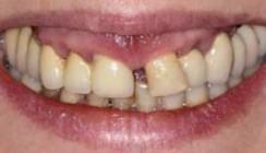 Prophylaxe- und Parodontaltherapie mit Konzept