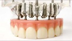 Implantatprothetik in der Praxis