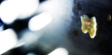 Laser-Prototyp soll schmerzarme Kariesbehandlung ermöglichen