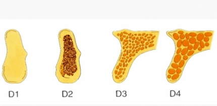 Die Osteodensitometrie mittels DVT
