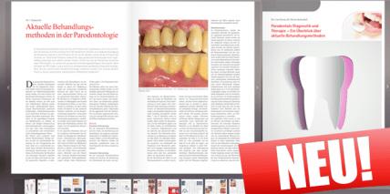 "Neues eBook ""Parodontale Diagnostik und Therapie"""