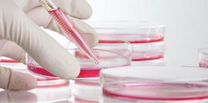 EHEC: Wissenschaftler bestimmen Genomsequenz