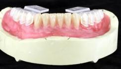 Ein Zahn für alle Fälle