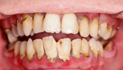 Ekel-Zähne als Beweismittel vor Gericht