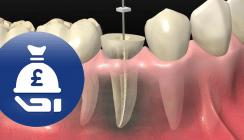 Feilenreste im Zahnfleisch: Patientin erhält Schadenersatz