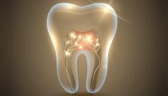 Die laserunterstützte Wurzelbehandlung – eine sinnvolle Innovation in der Endodontie