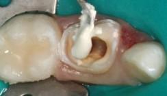 Die Pulpotomie in der Milchzahnendodontie
