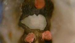 Klinischer Bericht zur Behandlung einer Perforation