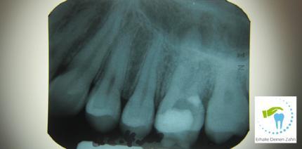 Muss ein Zahn nach einer Perforation gezogen werden?