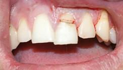 Behandlung einer Kronen-Wurzel-Fraktur mittels Komposit-Wurzelstift