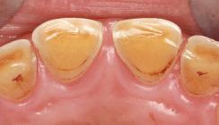 Dentale Erosionen – Mundhygieneempfehlungen für betroffene Patienten