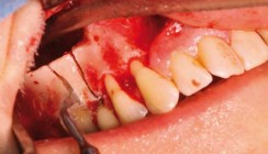 Piezochirurgie gestützte Explantation eines Implantates