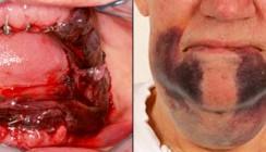 Nachblutungen - Chirurgische Problemfälle vermeiden