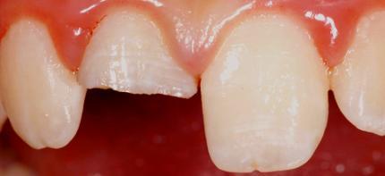 Pulpaamputation oder Apexifikation - Behandlungsmethoden traumatisierter Zähne