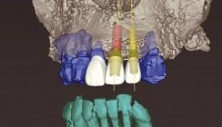 3-D-gesteuerte Implantation mit Sofortbelastung im ästhetischen Bereich