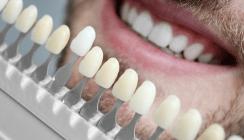 Kosmetische Zahnbehandlung auf Kosten der Unfallversicherung?