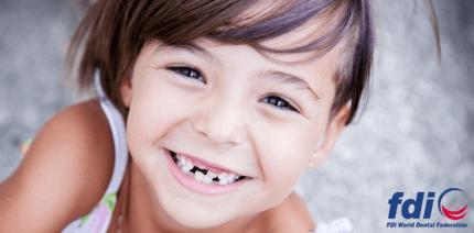 """FDI präsentiert neue allgemeingültige Definition von """"Zahngesundheit"""""""