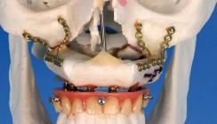 Kieferrekonstruktion: Fibulatransplantate mit osseointegrierten Dentalimplantaten