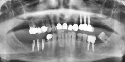 Versorgung des Freiendsattels flapless auf einteiligen Implantaten