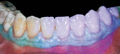 Mikro-invasive Behandlung von post-orthodontischen White Spots auf Glattflächen